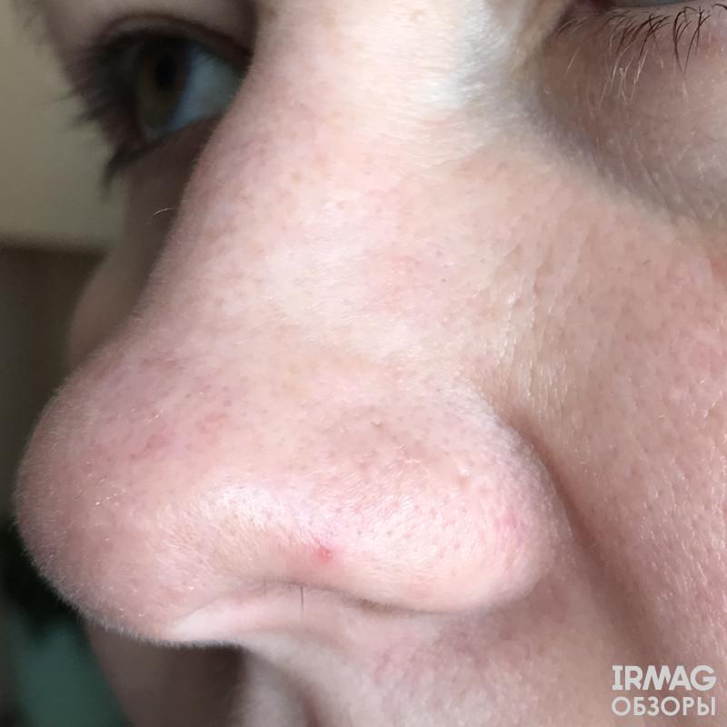 вот это покраснение на носу через час исчезло не оставив и воспоминаний, а носик остался очень чистый